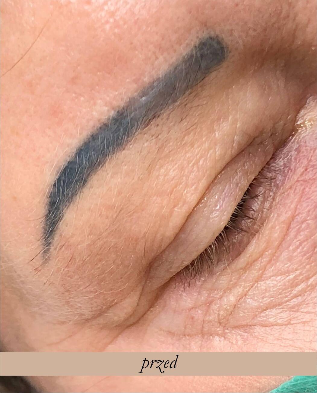 Laserowe usuwanie makijażu